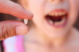 Consulta a los expertos: ¿Qué hacer si a tu hijo se le rompe un diente?